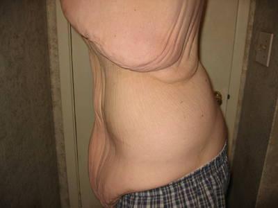 gordo-flaco11